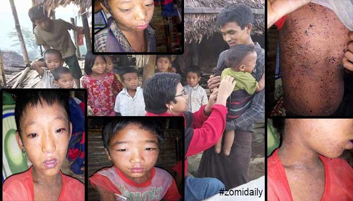 Kawlgam Naga Region sungah akilawhthei natna hangin naupang 30 sikhin