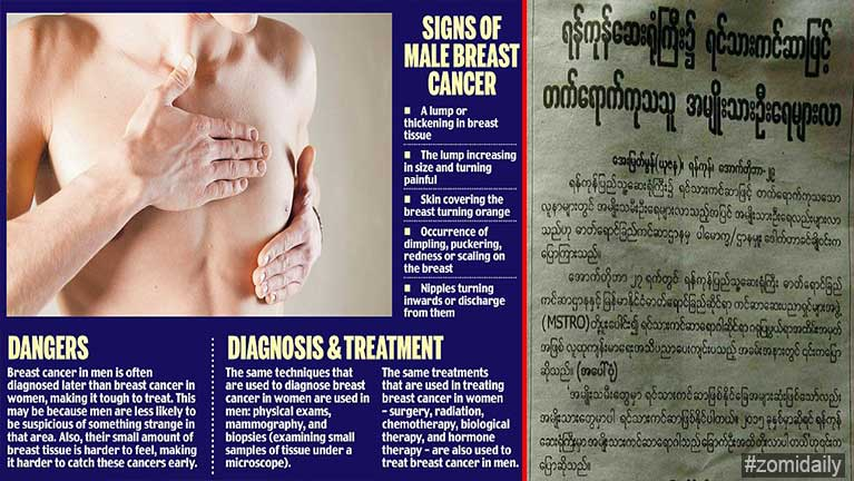 Aki dop huai pasal nawi Cancer natna, pasal Breast Cancer nei tamsemsem