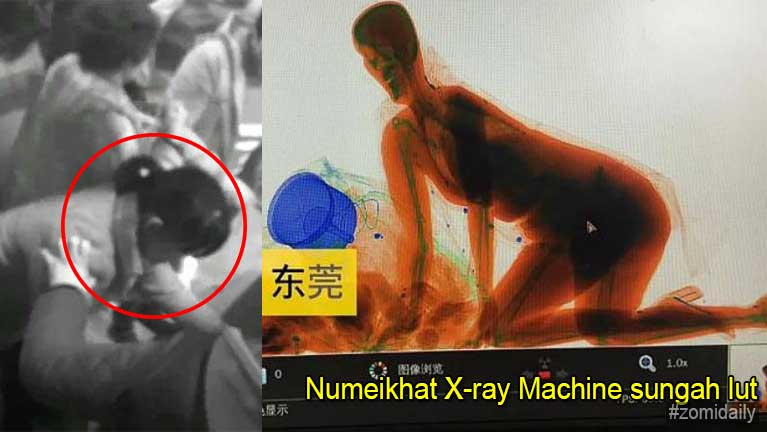Numeikhat asumbawm amansuahding patau in X-ray Machine sungah lutkhawm